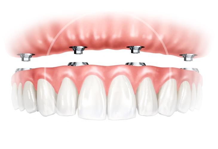 Технология Зубы за День